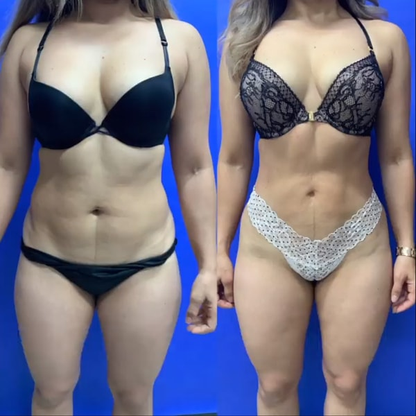 Before and after photo of Liposuction with BodyTite