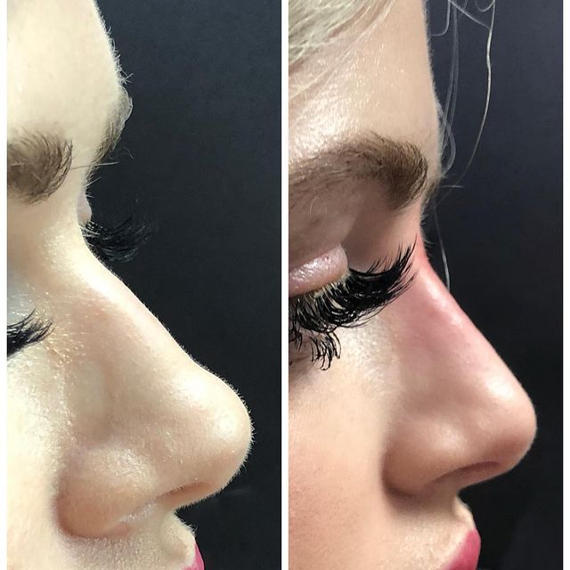 before and after liquidrhinoplasty