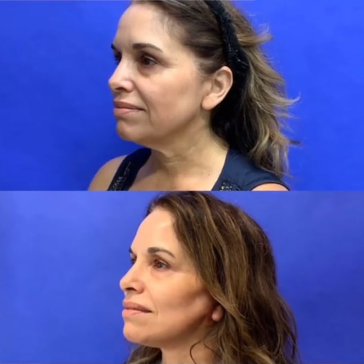A mini-face & necklift before/after photo