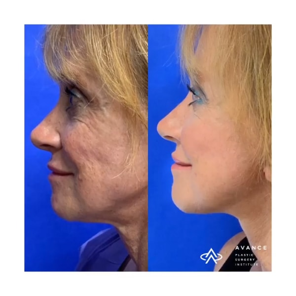 before and after pphotos after radiofrequency technology to resurface & tighten her skin in combination with a mini facelift to further improve her facial contour