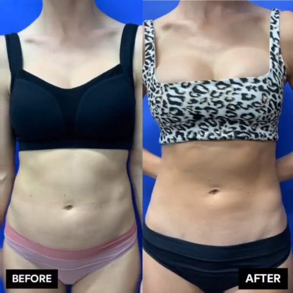 Before and after Ultrasound assisted liposuction & radiofrequency technology work