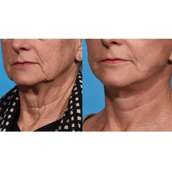 before and after 1 week after a lower facelift & necklift