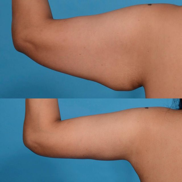 before and after 4 weeks after her arm lift looking