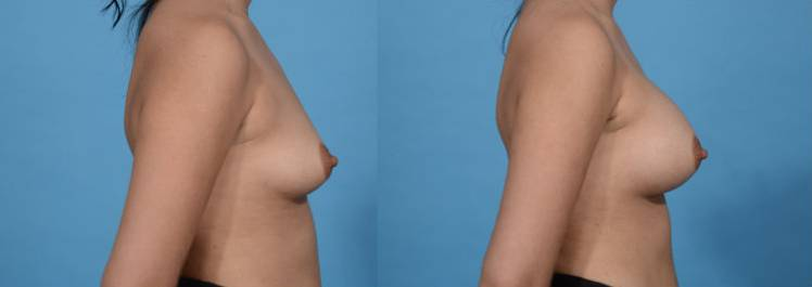 Before and After - Breast Augmentation