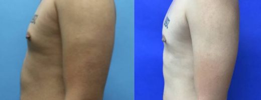 Before and After - Radiofrequency Assisted Liposuction