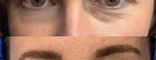 Before and After - Upper Blepharoplasty