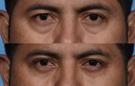 Before and After - Lower Blepheroplasty