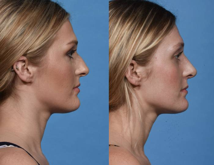 Before and After - Rhinoplasty