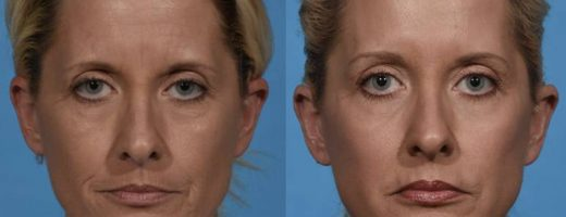 Before and After - Laser Resurfacing