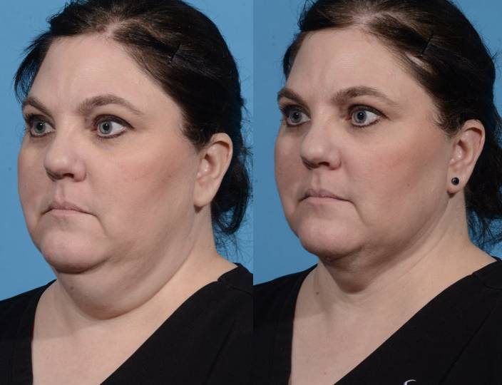 Before and After - Neck Liposuction with FaceTite Radiofrequency
