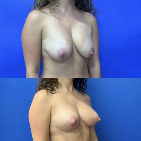 Before and After - Mini-Breast Lift