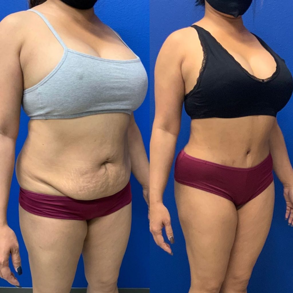 Before and After - Abdominoplasty