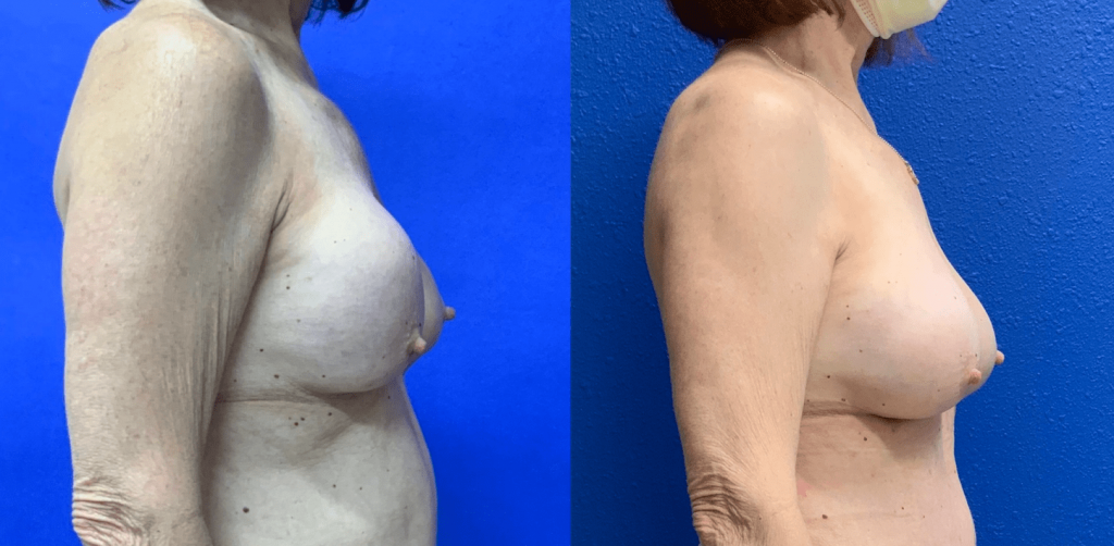 Before and After - Capsular contracture Correction