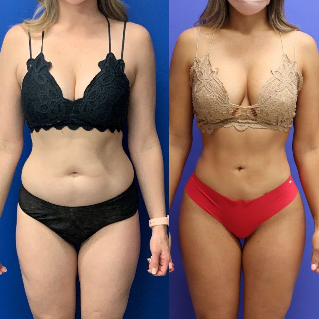 Before and After - Brazilian Buttlift