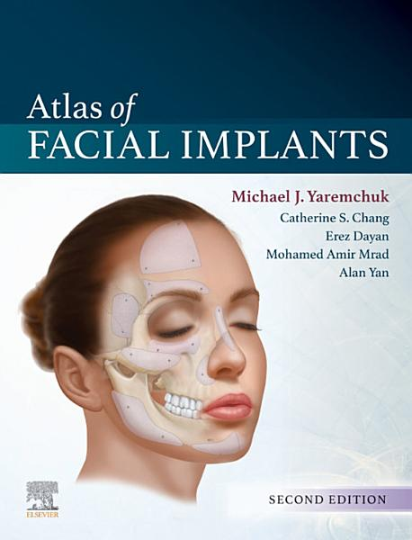 Book cover: Atlas of Facial Implants