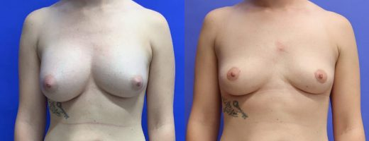 Before and After - Breast Implant Removal