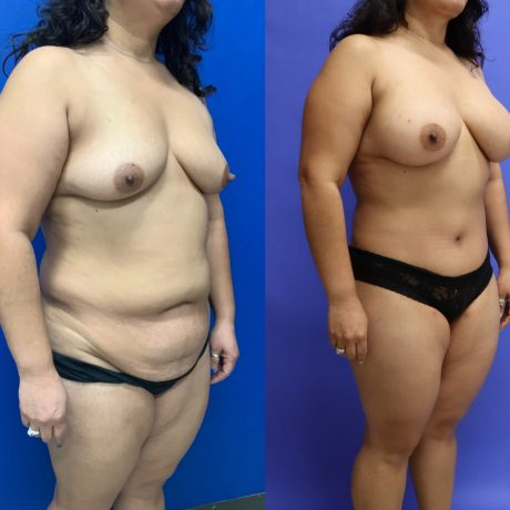 Before and After - Mommy Makeover