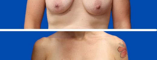 Before and After - Breast lift with implants (Augmentation Mastopexy)
