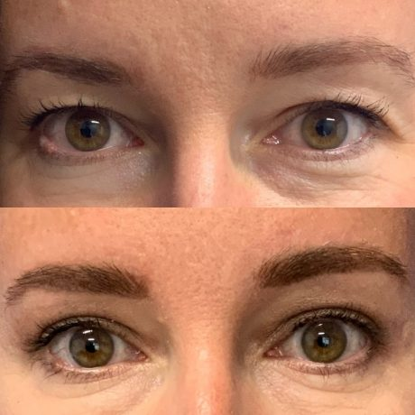 Before and After - Eyes