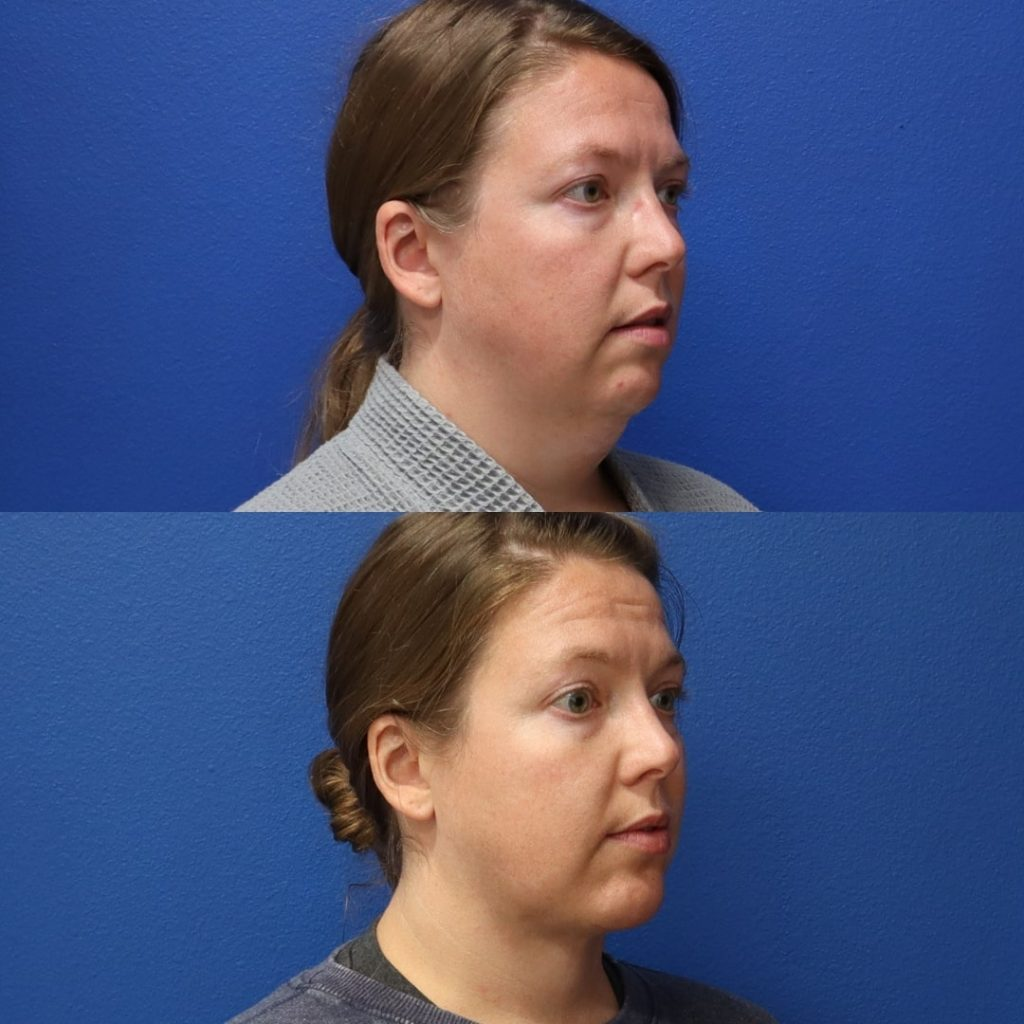 Before and After - Neck liposuction