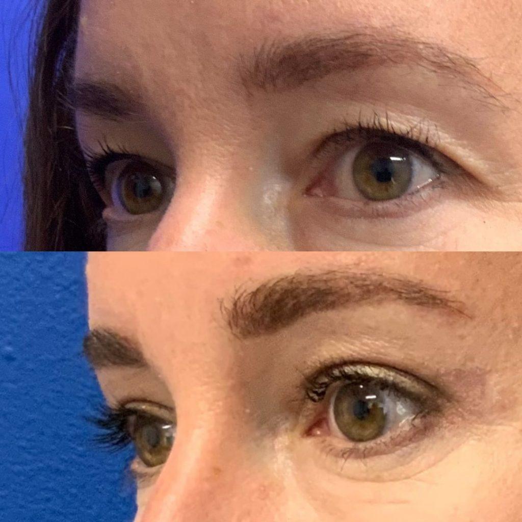 Before and After - Upper Blepharoplasty