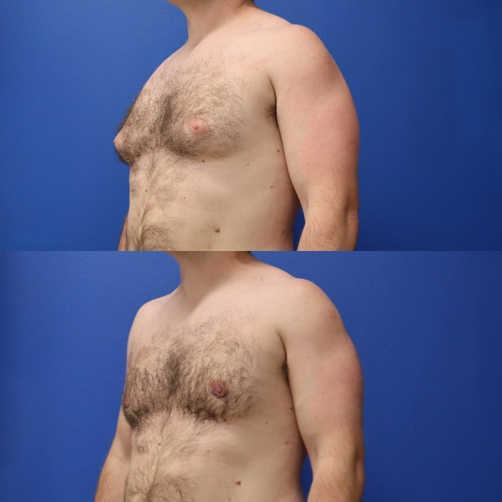 Before and After - Gynecomastia (Male Breast Reduction)