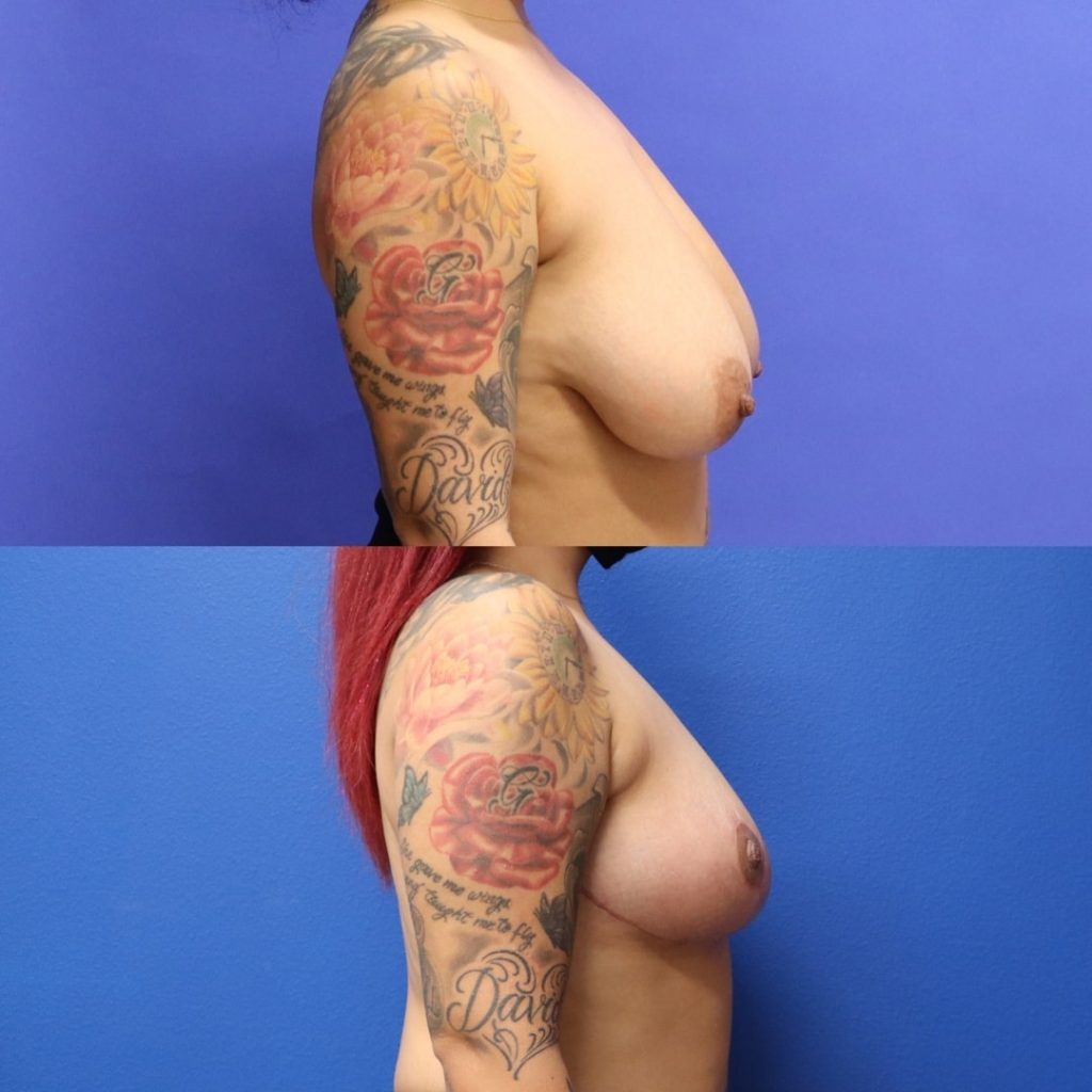 Before and After - Breast Reduction