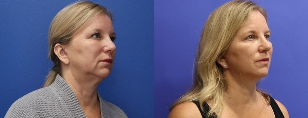 Before and After - Mini Face/Necklift